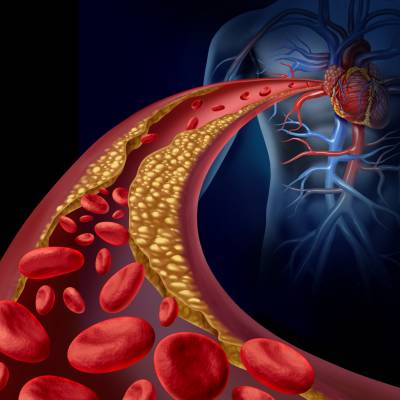 8 de agosto é Dia Nacional de Combate ao Colesterol